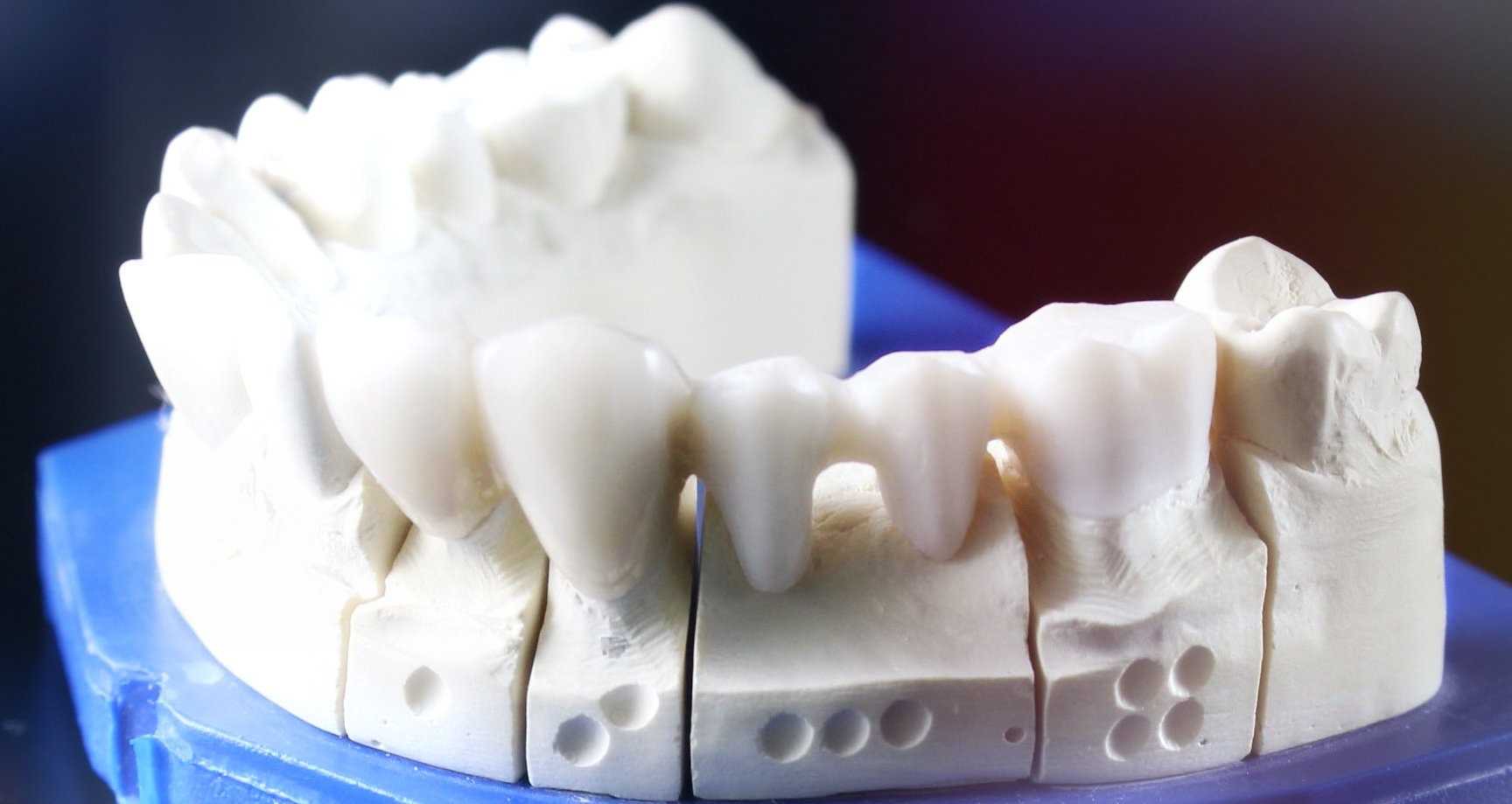 3d-systems-dental-services
